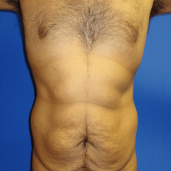 Manhattan abdominoplasty before 8